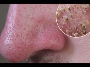 Do this to ELIMINATE Black Points from Your Nose in 5 MINUTES or Less for One Week - YouTube