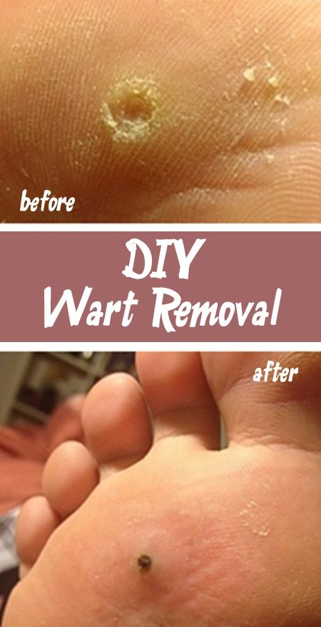 Diy Wart Removal