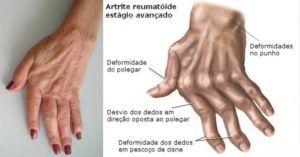 Combata a artrite, artrose e reumatismo com estes dois remédios naturais