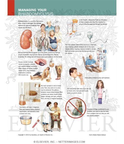 Understanding rhabdomyolysis causes signs and symptoms essay