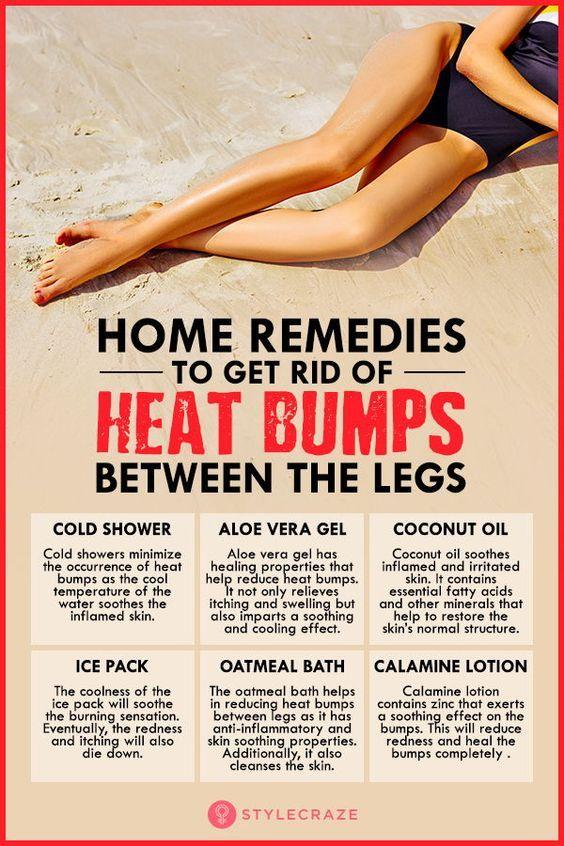 f1342b04122d9548cfa2bc81f24b9191 - How To Get Rid Of Allergy Marks On Legs
