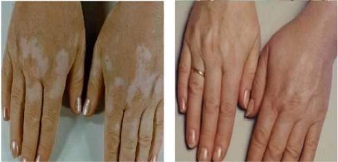 Vitiligo Is Mainly Two Types Segmental Vitiligo And Nonsegmental Melanosite Del In 2020 Vitiligo Face Skin Treatment Vitiligo Treatment