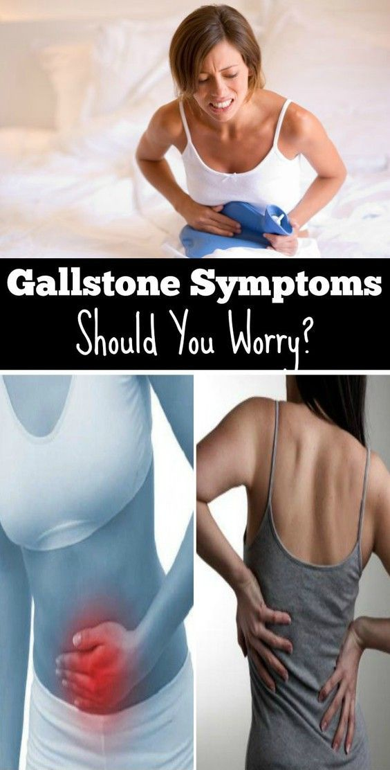 One component I should pressure at the beginning. More than -thirds of human beings with gallstones don't have gallstone symptoms. Even docs can't give an explanation for how you may have gallstones for several years and not occur any signs at all.