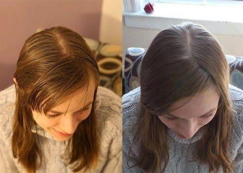 Den Schalter umzudrehen und die Haare mit Natron und Apfelessig zu waschen, sollte nur einen Monat dauern, aber jetzt kann ich nicht mehr aufhören. Es sind nun bereits sechs Monate vergangen, seitdem ich den Gebrauch von Shampoo gestoppt habe. Es begann alles mit einem kleinen Experiment, als...