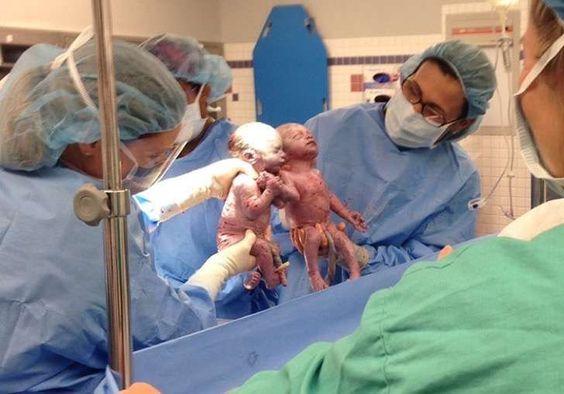 Estas gemelas nacieron agarradas de la mano. Hoy 2 años después están más unidas que nunca