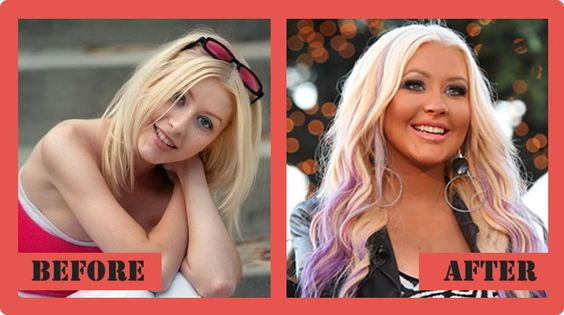 Christina Aguilera Plastic Surgery Before And After Christina Aguilera Plastic Surgery #ChristinaAguileraPlasticSurgery #ChristinaAguilera