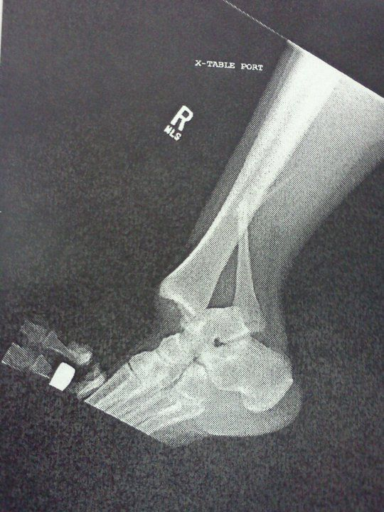 Dislocated ankle with broken Fibula :-(