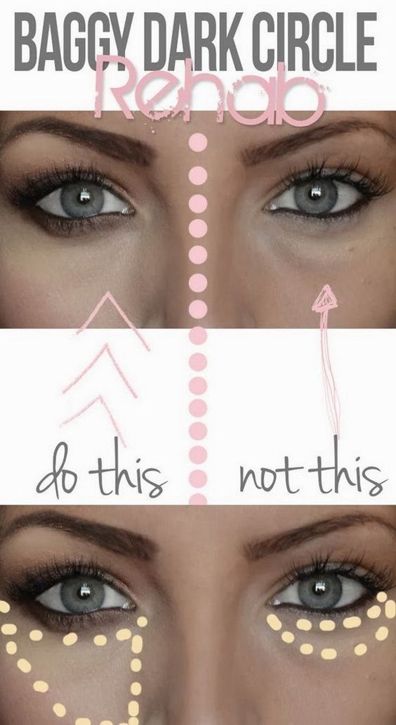 Excellent Lower Blepharoplasty Greek For U0026#39;Please Take My Bags!u0026#39; - Beauty Black Book