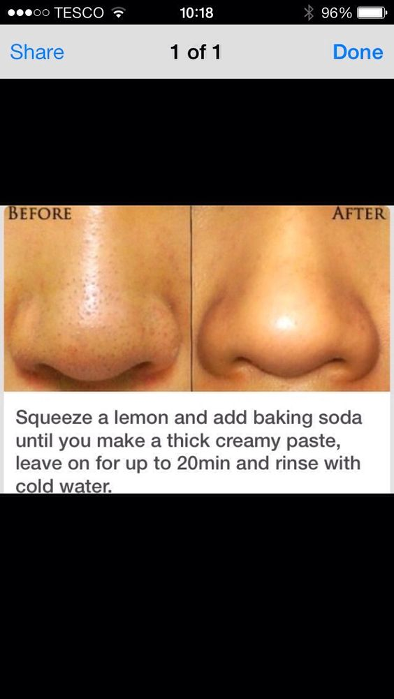 How To Get Rid Of Facial Pores 72