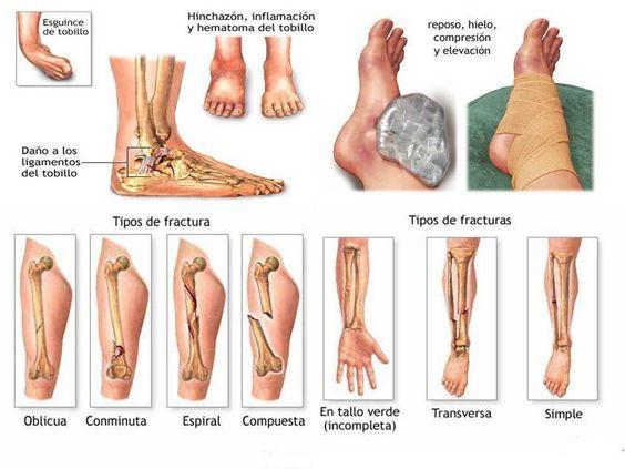 Esguince y tipos de fractura