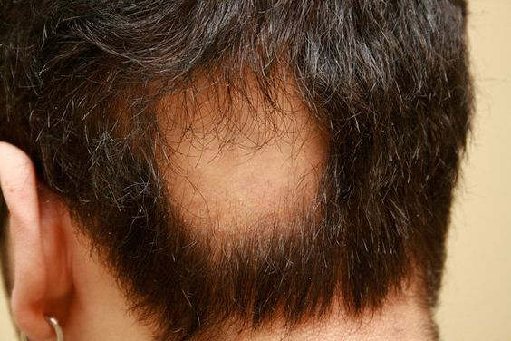 What are the reasons behind ‪‎hair loss‬? Here we wrote a full explanation about this disease including the reasons and its treatment.