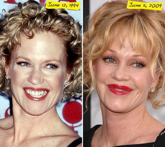 Melanie Griffith Bad Plastic Surgery Always interesting what you can find when you type in elective surgery and other related terms