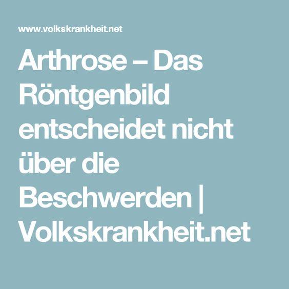 Arthrose – Das Röntgenbild entscheidet nicht über die Beschwerden   Volkskrankheit.net