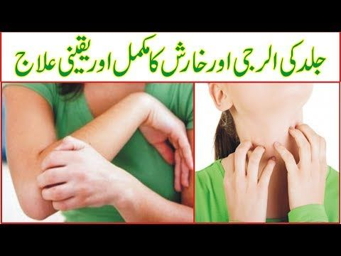 Pin By Rozi Khan On Tips Allergy Treatment Skin Allergy Treatment Skin Allergies