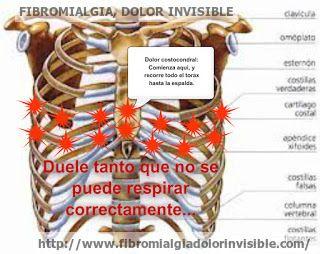 Fibromialgia. ¿Por qué tienes dolor insoportable en el tórax y te duele respirar?.
