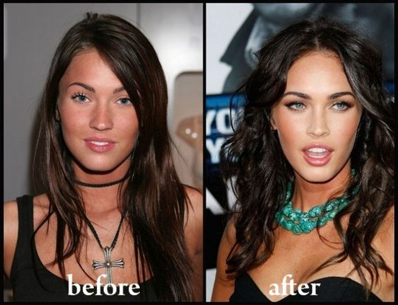 Beauty Myths Series: Life Will be Better after Plastic Surgery