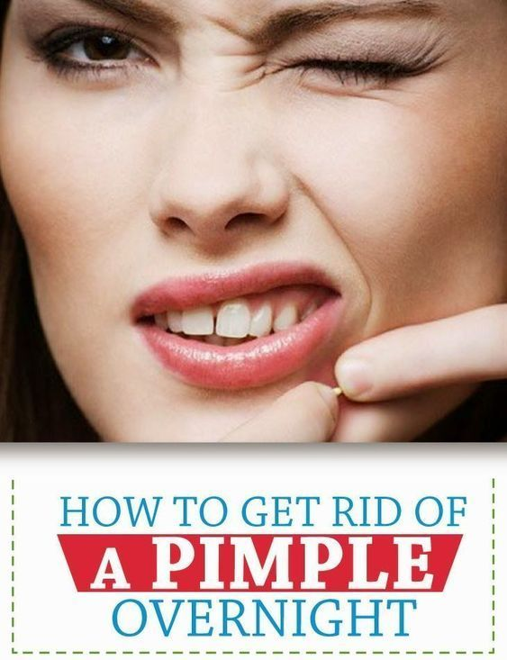 How To Get Rid Of Pimples Instantly How To Get Rid Of Pimples Acne In A Week Pimples Overnight How To Get Rid Of Pimples How To Remove Pimples