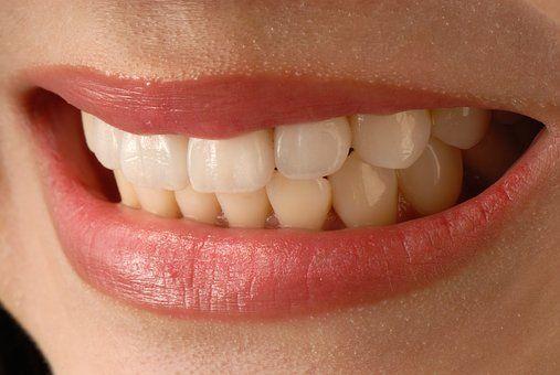 Are Veneers Helpful In Fixing Overbite Dental Veneers Wisdom Teeth Aftercare Veneers Teeth