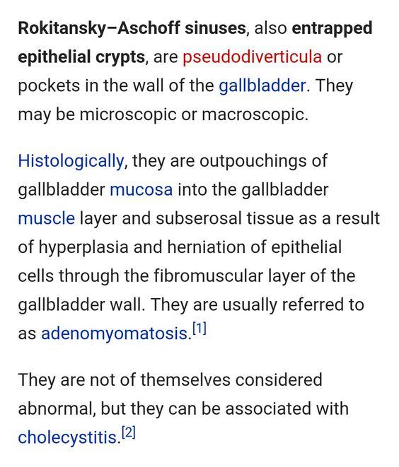 With Mature Teratoma Tremor Features Sinus Endometrial