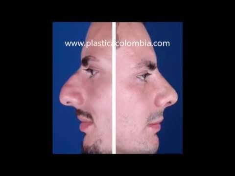 Rinoplastia nariz grande hombre
