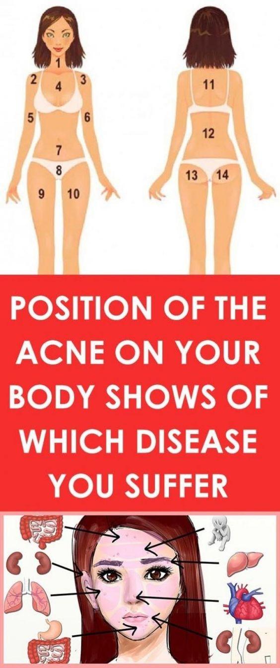 De positie van de acne op uw lichaam geeft aan, aan welke ziekte u lijdt