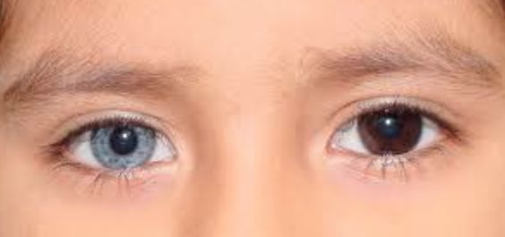 Heterochromia-caused by mosaicism, chimerism or injury