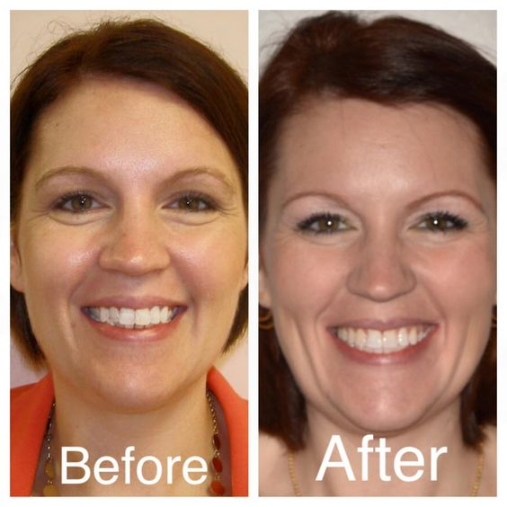 Great results with a palatal expander and braces at Amanda Gallagher ...