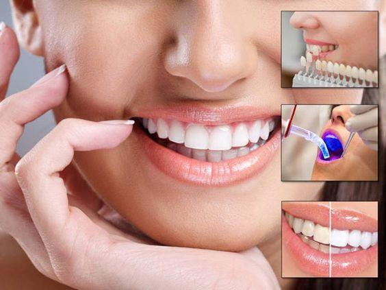 تبييض الاسنان بالليزر اسهل طريقه للحصول على اسنان بيضاء من غير وجع Dental Cosmetics Dental Treatment Cosmetic Dental Treatment