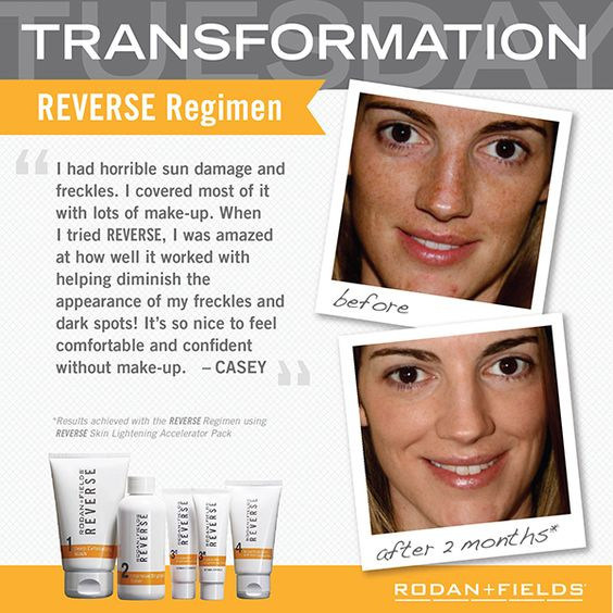 Reverse Regimen Casey S Before And After Years Of Sun