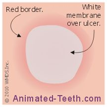 Link to aphthous ulcer diagram. http://www.animated-teeth.com/canker_sores/t3_canker_sore_remedies.htm