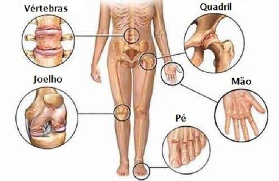 Quer aprender a aliviar a insuportável dor articular? Neste artigo vamos ensinas 5 dicas muito práticas para combater as dores nas articulações, basta aplicar estas dicas no seu dia-a-dia e vai ver que as suas dores vão acabar.