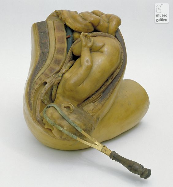 This 1771 obstetrical wax model shows forceps being used to disengage the head of a fetus in cephalic presentation. The head is grasped transversally (above the ears) with the forceps when it has descended into the inferior strait and the occiput has rotated forward, under the pubis. The model was commissioned by Felice Fontana, who was working on the installation of the Museo di Fisica e Storia Naturale of Florence, from the sculptor Giuseppe Ferrini and his assistant Clemente Susini.