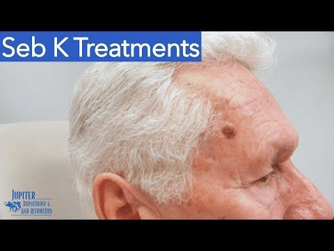 Pin By Debbie Pleuler Rakowitz On Skin Seborrheic Keratosis How To Remove Topical Treatments