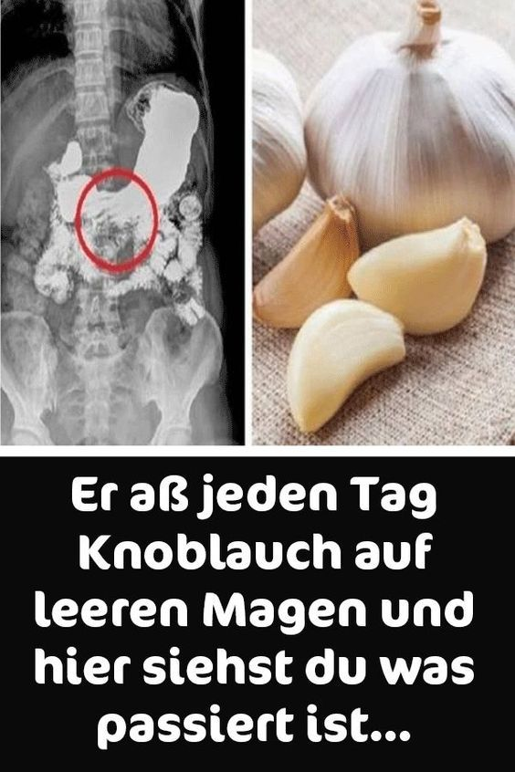 Knoblauch auf nüchternen Magen essen, um Gewicht zu verlieren