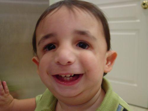 genetic facial disease