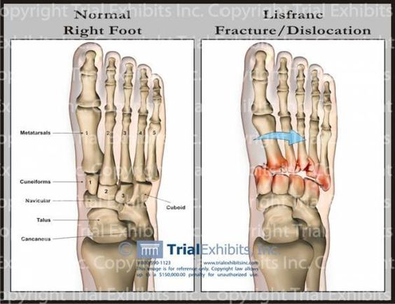 Lisfranc Fracture.  Where is the nopetopus when you need it?