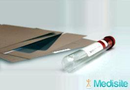 EXAMENS ET INTERVENTIONS CHIRURGICALES Tout savoir sur le test de dépistage sanguin de la trisomie 21