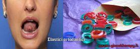 Utilizzo elastici ortodontici