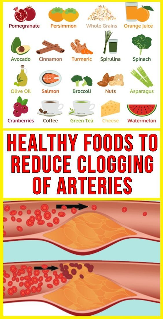 Healthy Foods To Reduce Clogging Of Arteries Watermelon Healthy Healthy Advice Healthy