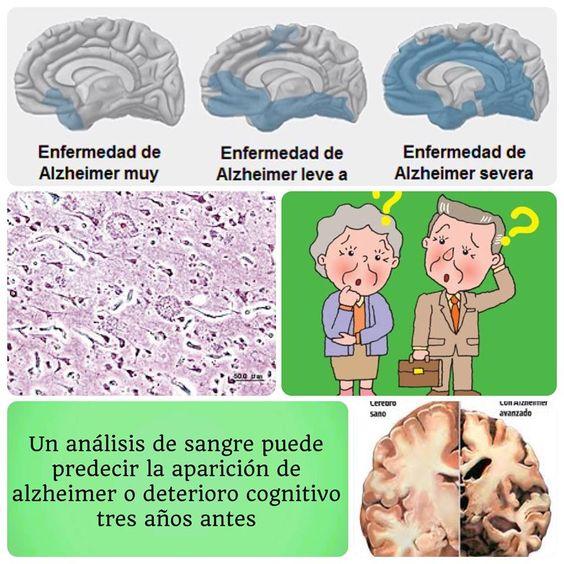 Un análisis de sangre desarrollado y validado por un equipo de investigadores de Estados Unidos puede predecir, con una fiabilidad de más del 90%, si una persona va a desarrollar algún deterioro cognitivo o Alzheimer con una antelación de tres años.  www.facebook.com/divulgades