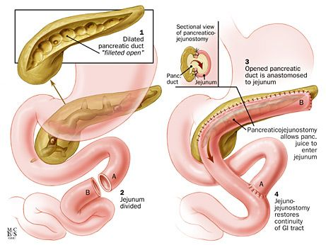 Image result for pancreaticojejunostomy