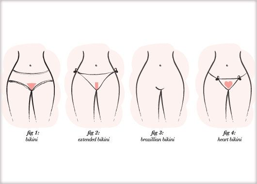 What is a california bikini wax