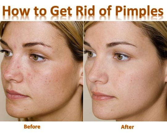 What how to get rid of spots and blemishes overnight