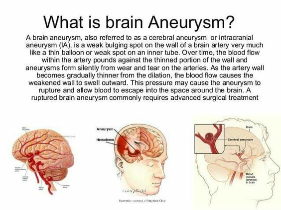 what is an aneurysm ? | aneurysm | pinterest | what is, Human Body
