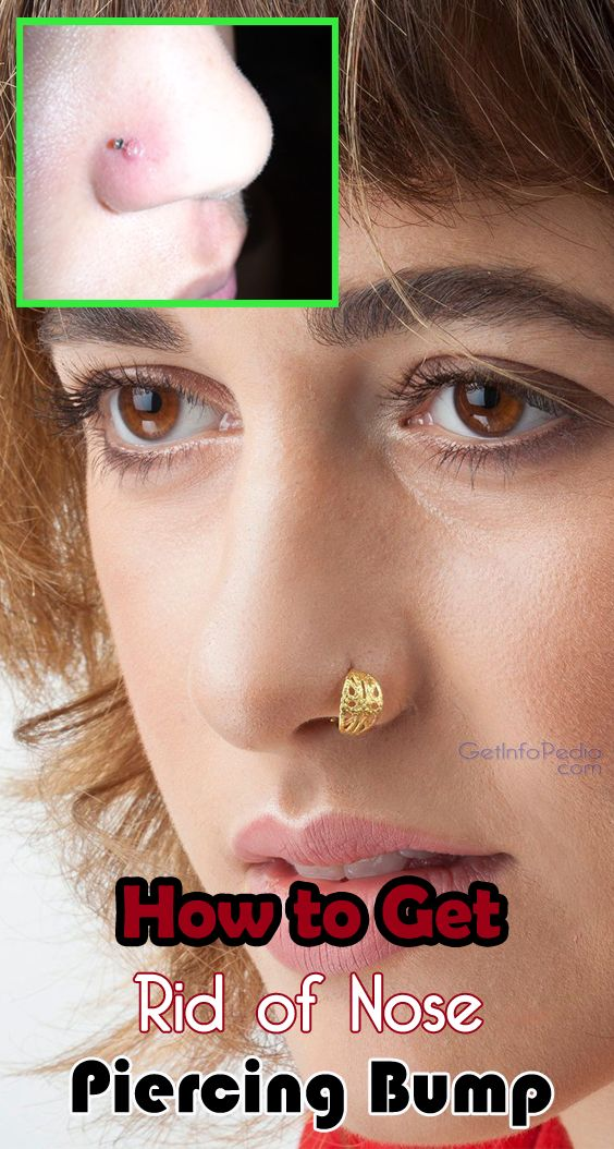 f5296f8f53ce441d4aa47f6075bfdc28 - How To Get Rid Of Nose Ring Bump Overnight