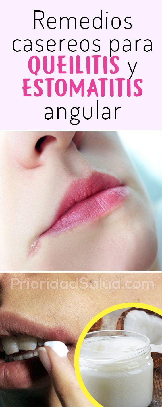 Para tratamiento boqueras medicamentos