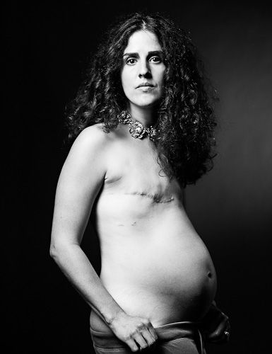 The Scar Project is a photo series depicting breast cancer survivors without the pink ribbon.