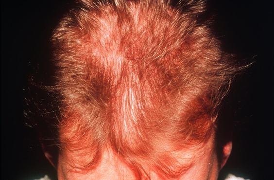 Typisch #Haarausfall: weiblich, 40+ und zusätzlich Stress
