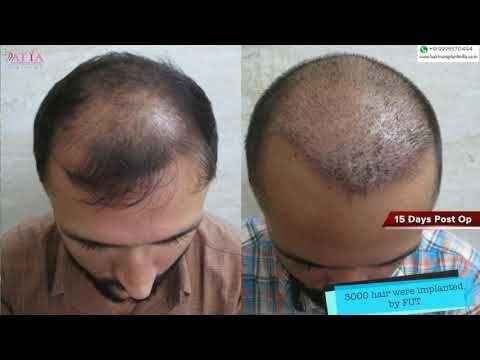 Fut 3000 Grafts Hair Transplant 15 Days Review Hair Transplant Hair Grafting Hair Loss