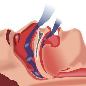Natural Cure For Sleep Apnea - Effective Ways To Treat Sleep Apnea | Find Home Remedy